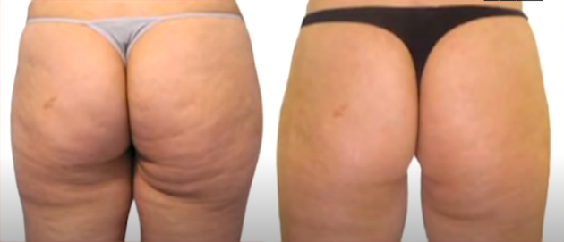 the result of laser liposuction on rear end
